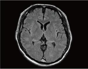 正常な脳のMRI