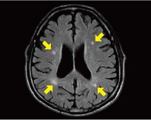 無症候性脳梗塞MRI