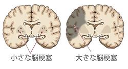 血管性認知症