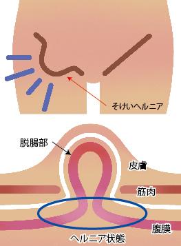 脱腸(そけいヘルニア)