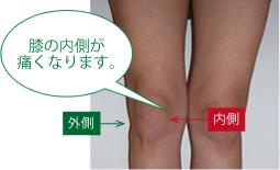 中高年における膝痛の現状