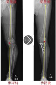下肢機能軸検査