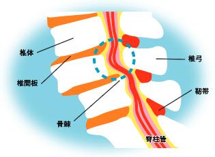 腰椎椎間板(ようついついかんばん)ヘルニア