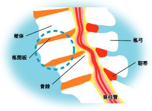 腰椎変性(ようついへんせい)すべり症・腰椎分離(ようついぶんり)すべり症