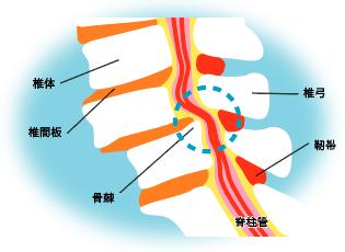 腰部脊柱管狭窄症(ようぶせきちゅうかんきょうさくしょう)